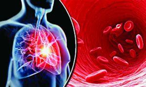 Google, Retina Scan, Test, Heart Disease