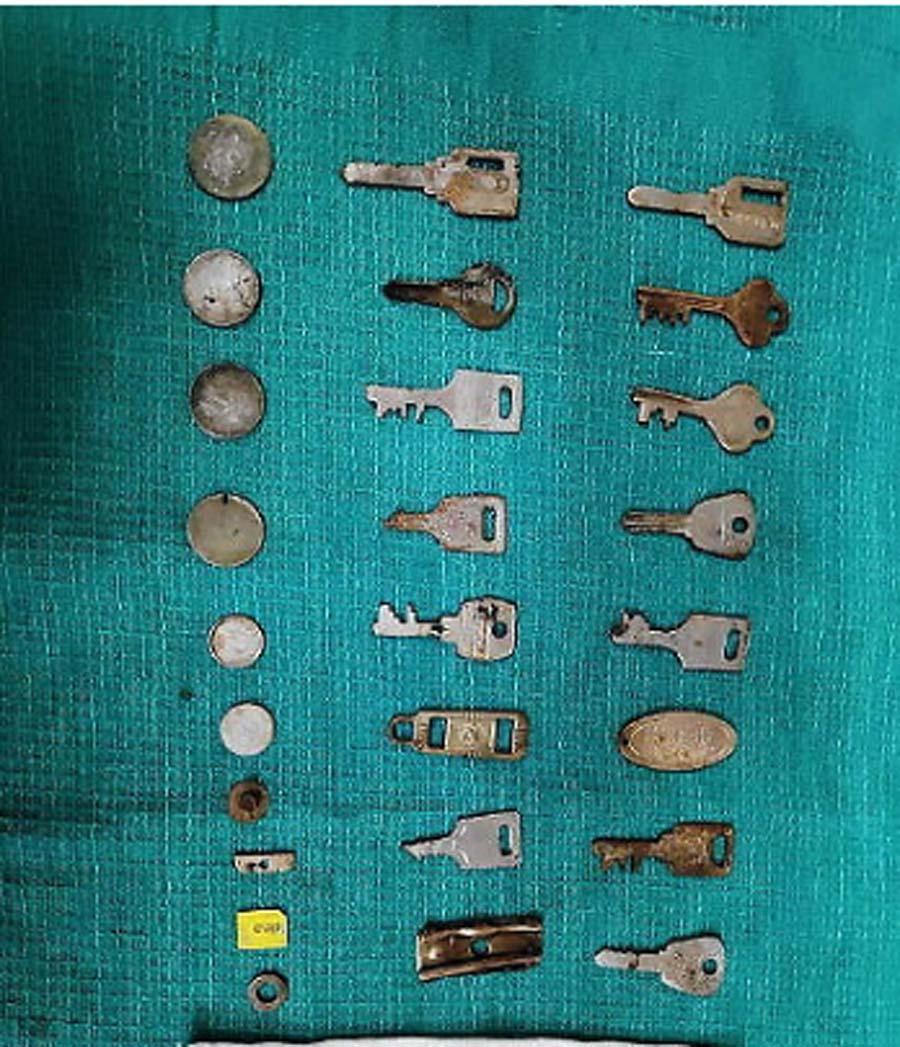 Coins, Sim, Card, Found, Stomach, Chennai